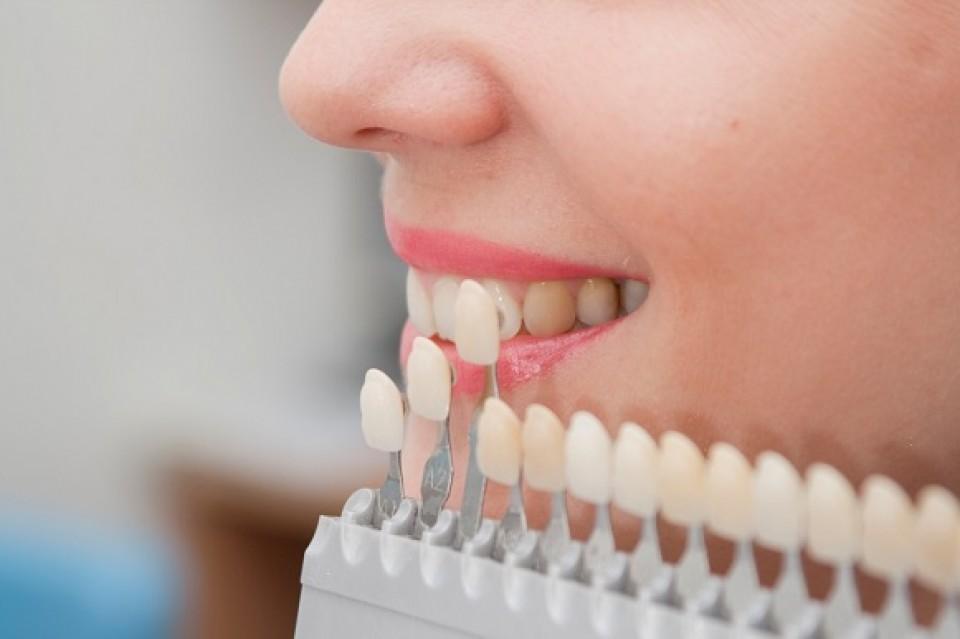Sbiancamento-dentale-960x600