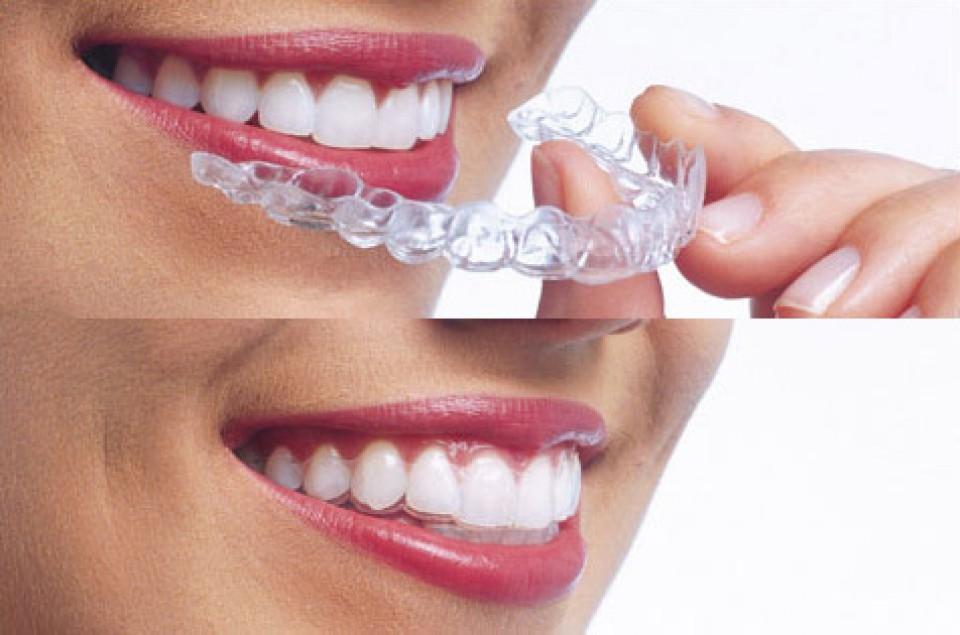 ortodonziainvisibile2-960x600